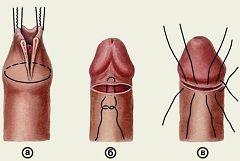 Обрізання крайньої плоті - ціркумізація, інтимна пластика для чоловіків