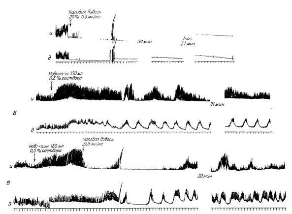 Реакція гладкої мускулатури иннервирована і денервірованних петель