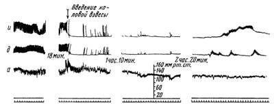 Реакція гладкої мускулатури иннервирована і денервированной кишкових петель при введенні каловой суспензії на тлі гангліонарних блокади