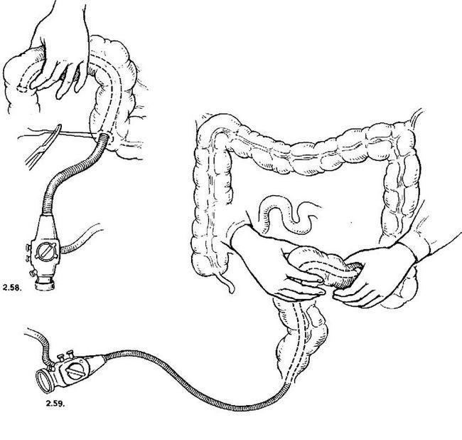 інтраопераційна колоноінтестіноскопія