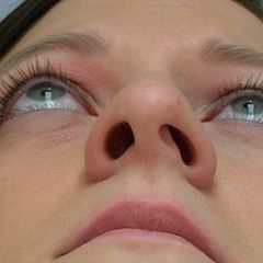Викривлення перегородки носа