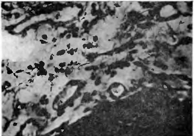 Круглоклітинна інфільтрація тканини