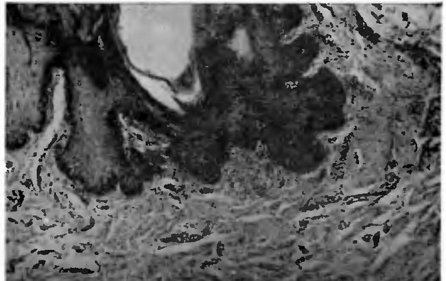 ділянка гиперкератоза