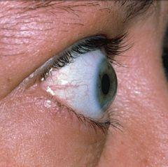 Причина екзофтальму - дисфункція імунної системи