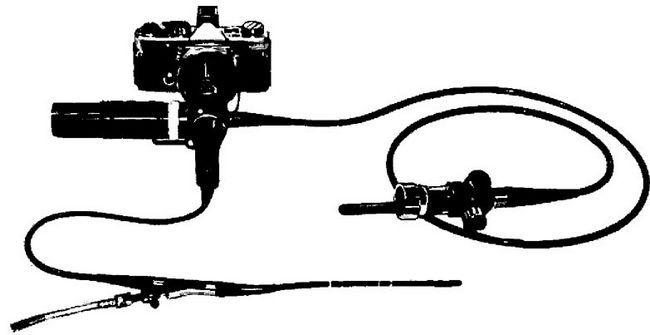 Вентрікулоскоп