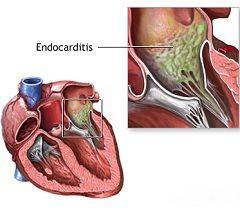 Ендокардит - запалення ендокарда