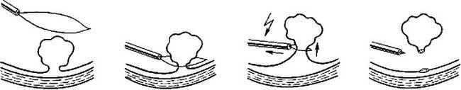Етапи ендоскопічної поліпектомія діатермічної петлею