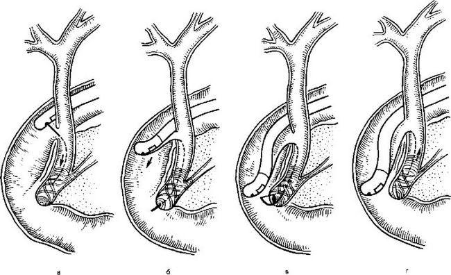 Етапи ендоскопічної папіллотоміі через холедоходуоденоанастомоз