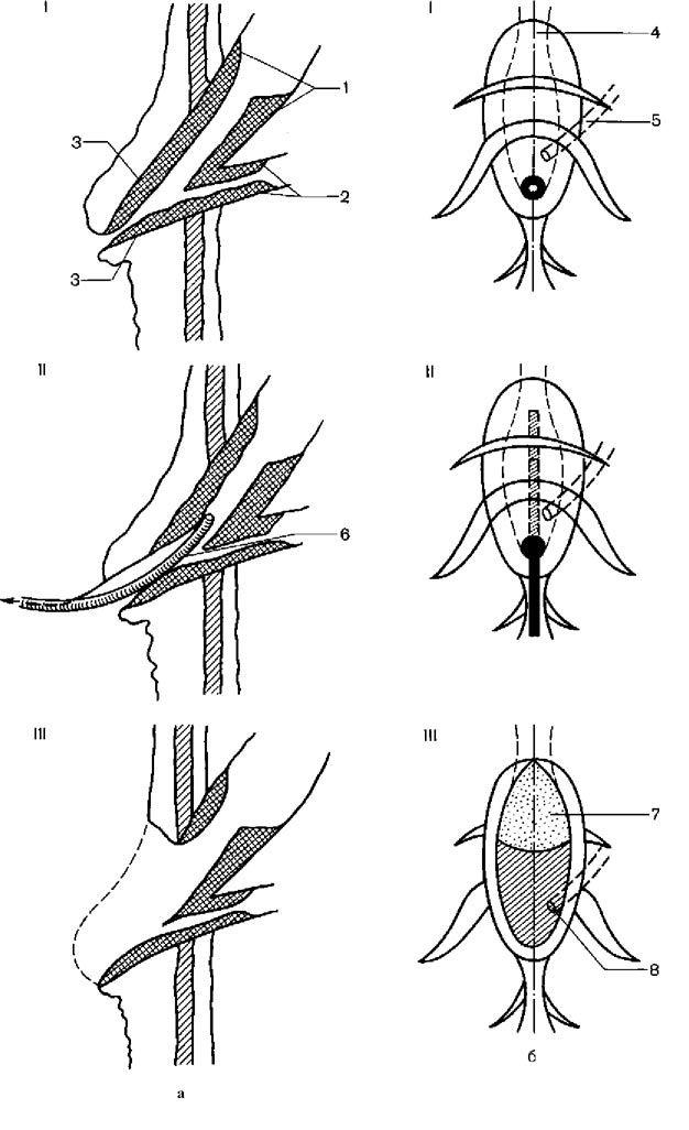 Анатомія дванадцятипалої кишки, термінального відділу загальної жовчної протоки і панкреатичного протоки