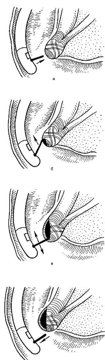 Етапи ендоскопічної папіллотоміі неканюляціонним способом