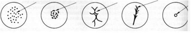 Типи отворів великого сосочка дванадцятипалої кишки