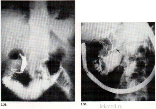 ЕРХГ. холедохолітіаз