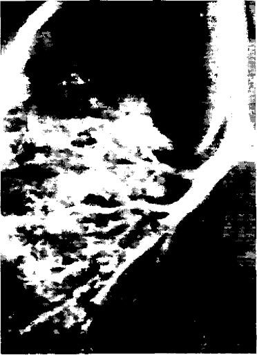 Трахеобронхограмма хворого з додатковим трахеальним бронхом