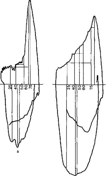 Типові форми петлі
