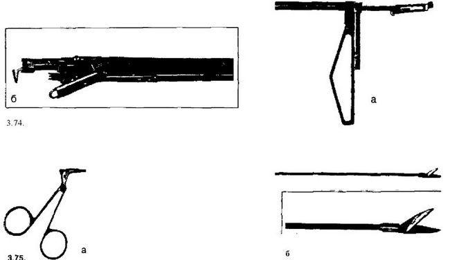 Зшивачі бронхоплевральних повідомлень