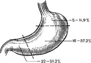 Локалізація ранніх форм раку шлунка