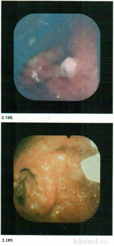 Рак вихідного відділу шлунка