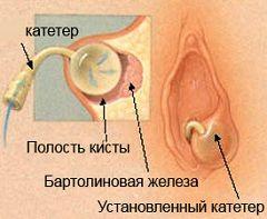 Введення word-катетера - метод лікування кісти бартолінової залози