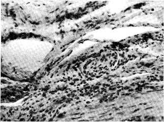 Мікрофотографія очеревини на віддалі від вогнища запалення