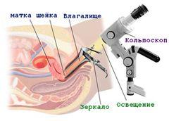 Схема проведення кольпоскопії