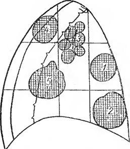 Схема розподілу середостіння на відділи і поверхи