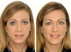 До і після контурної пластики обличчя
