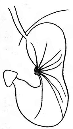 Конвергенція складок шлунка