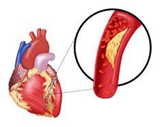 коронарографія серця