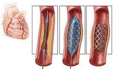 коронарографія судин