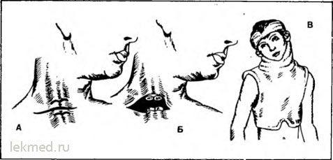 Операція при вродженої м`язової кривошиї