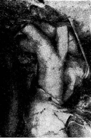 Тріфуркація плечеголовного стовбура