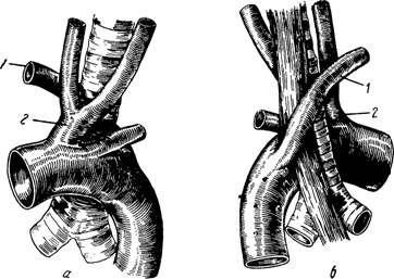 Незвичайний початок правої підключичної артерії
