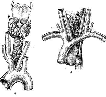 нижні щитовидні судини