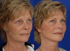 До і після кругової підтяжки обличчя