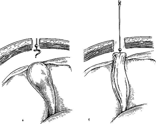 Лапароскопія, холецістостомія за допомогою голки Прудкова