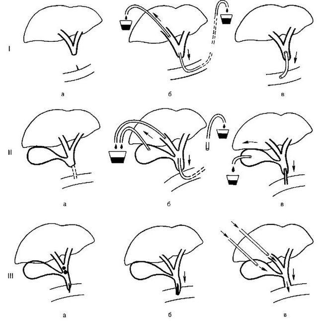 Варіанти ендоскопічного дренування жовчовивідних проток