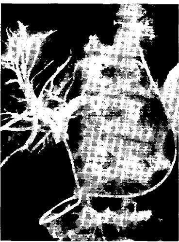 Холангіографія через зовнішній чрезназальний дренаж загального печінкового протоку