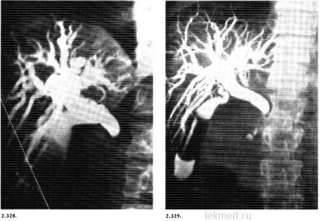 Холангіограмми у хворого на рак головки підшлункової залози