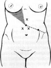 Місця проколів троакаром передньої черевної стінки при лапароскопії