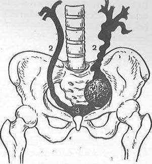 Схема розташування лімфатичної кісти