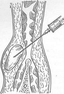 Пункція лімфатичної кісти через черевну стінку