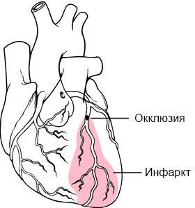 лікування кардіогенного шоку