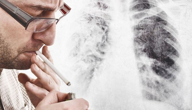 легені курця
