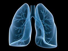 Легенева гіпертензія лікування