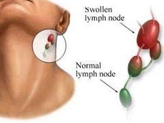 Методи лікування шийного лімфаденіту