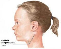 Лімфаденіт - захворювання лімфатичної системи