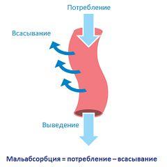 Мальабсорбція - порушення всмоктування в кишечнику