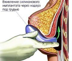 Мамопластика - корекція форми і / або розміру грудей