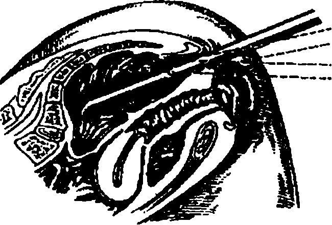 Ректоросігмоідоскопія
