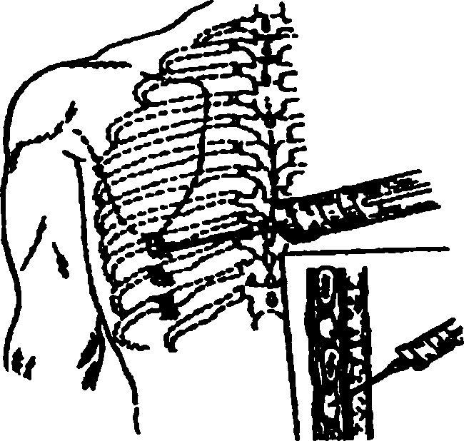 Взаємовідносини ребер і пункційної голки